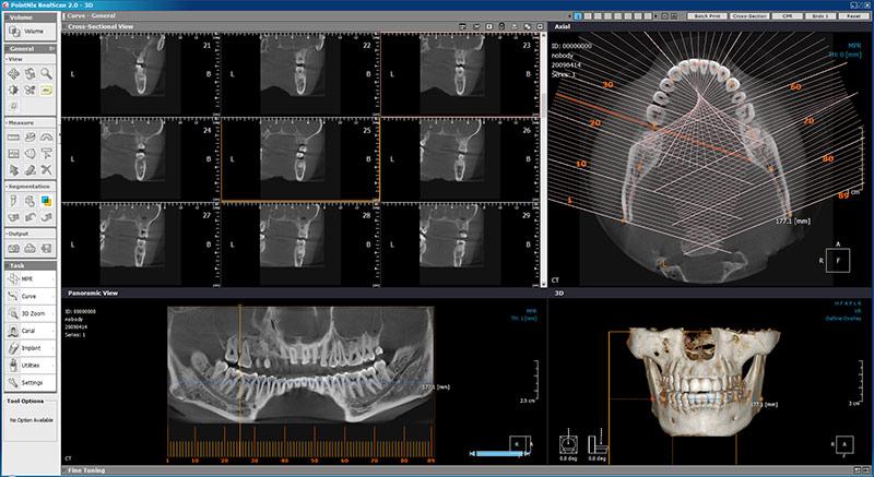 Sensores para imágenes dentales 3D insuperables en Málaga