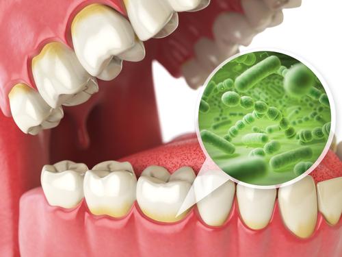 Combatir el mal aliento, Clínica Dental Fernández de Rota Málaga