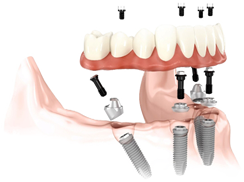 All on Four - Implantes Dentales