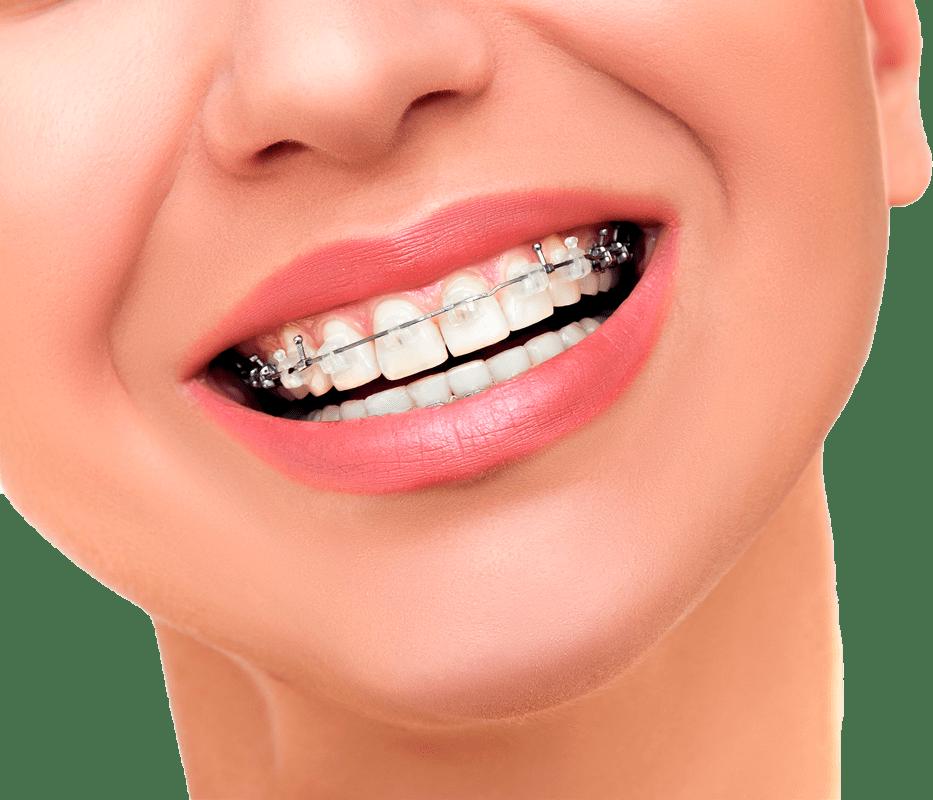 Ortodoncia DAMON