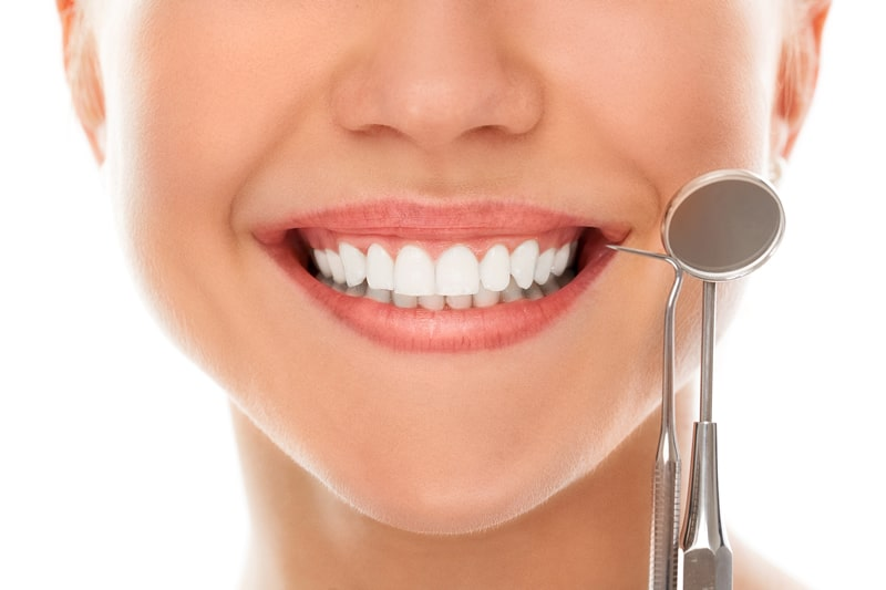 Estética Dental en Málaga