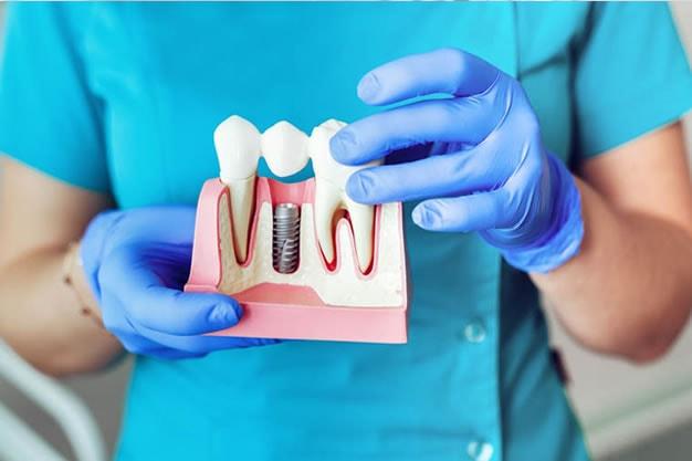 Ortodoncia en Málaga Clínica Dental Fernández de Rota