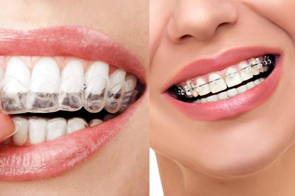 Tipos de ortodoncia en Málaga