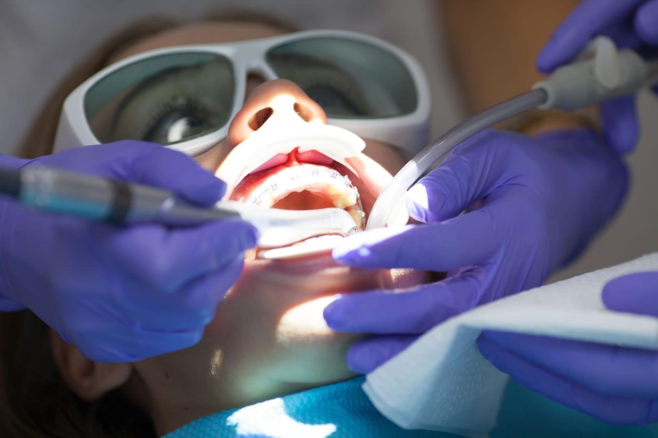 Blanqueamiento Dental en Málaga
