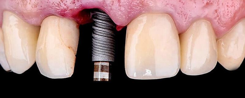 implantes-min4
